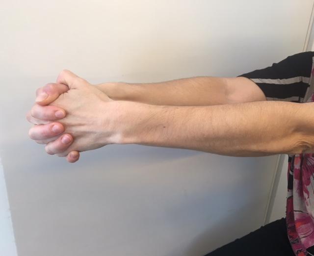 Ejercicio-brazo-mastectomia